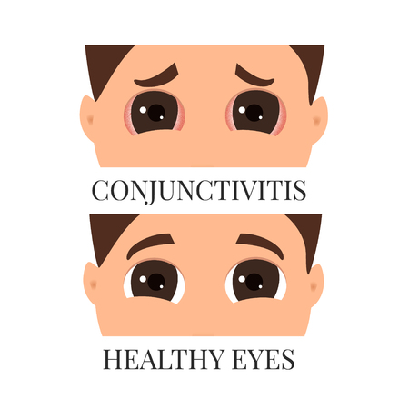 Man with conjunctivitis
