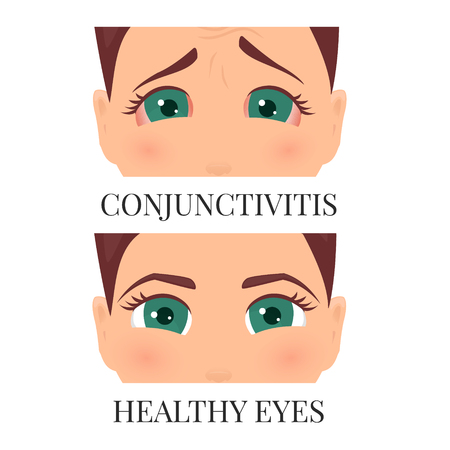 Woman with conjunctivitis Illustration