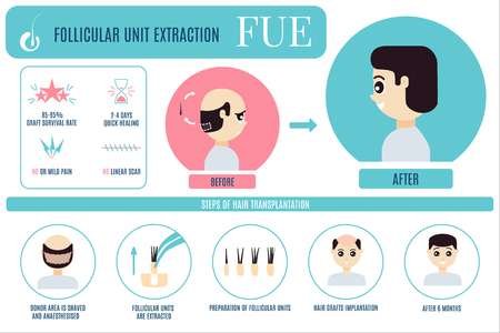 FUE treatment infographic for men 版權商用圖片 - 92033724