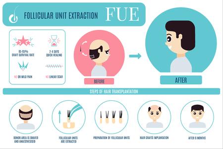 Infografika leczenia FUE dla mężczyzn Ilustracje wektorowe