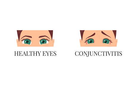 Woman with conjunctivitis. Closeup view. Patient with pinkeye. Infectious viral disease. Medical concept. Anatomy of people. Vector illustration.