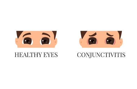 Man with conjunctivitis, Closeup view vector illustration