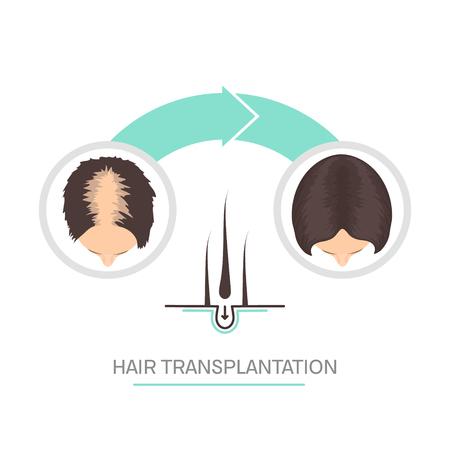 Hair transplantation for women - 2 step infographics.
