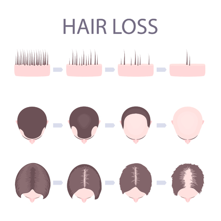 Male and female pattern hair loss set. Stages of baldness in men and women. Number of follicles on scalp in each step. Alopecia infographic medical vector template for clinics and diagnostics centres.