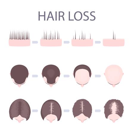 Männlicher und weiblicher Musterhaarverlustsatz. Stadien der Kahlheit bei Männern und Frauen. Anzahl der Follikel auf der Kopfhaut in jedem Schritt. Infographic medizinische Vektorschablone der Alopezie für Kliniken und Diagnosezentren.