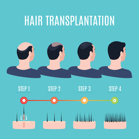 Hair transplantation surgery stages Vector illustration. Vettoriali
