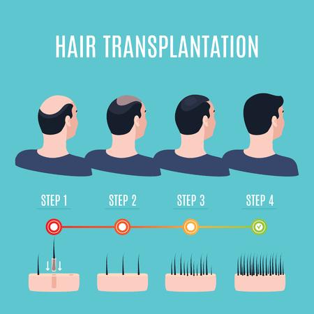 Hair transplantation surgery stages Vector illustration. Stock Illustratie