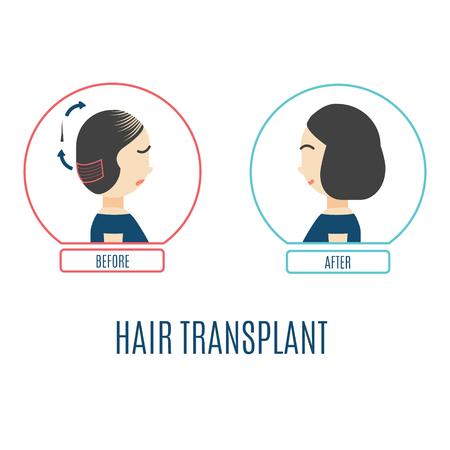 Hair transplant for women Vector illustration.