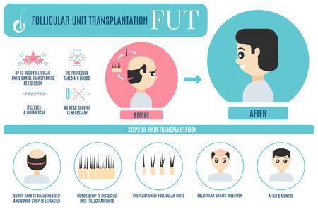 FUT hair transplantation for men Vector illustration. Illustration