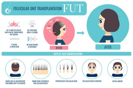 FUT hair transplantation for women Vector illustration.