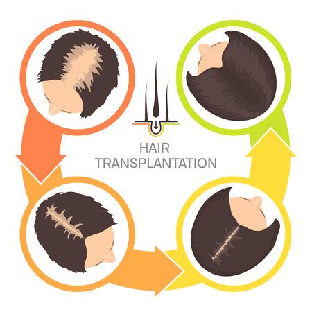 Hair transplantation for women-4 step infographics Vector illustration.