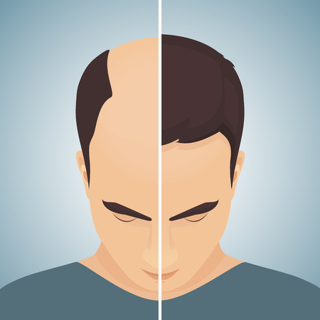 Hair loss in men, before after concept Vector illustration.