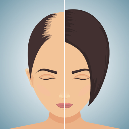 Hair loss in women - before after concept Vector illustration.