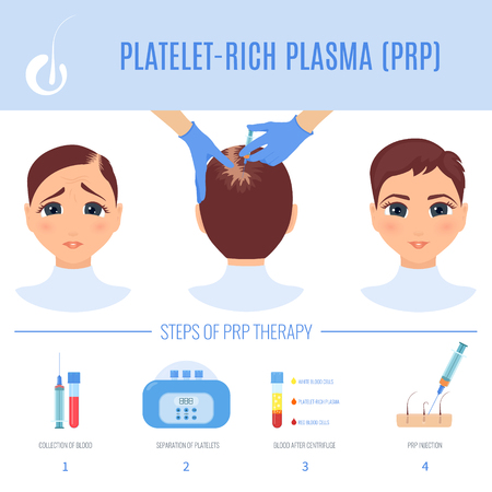 Platelet rich plasma injection procedure. PRP therapy process for women. Female hair loss treatment infographics. Hair regrowth stimulation method. For cosmetology beauty clinic. Vector illustration.