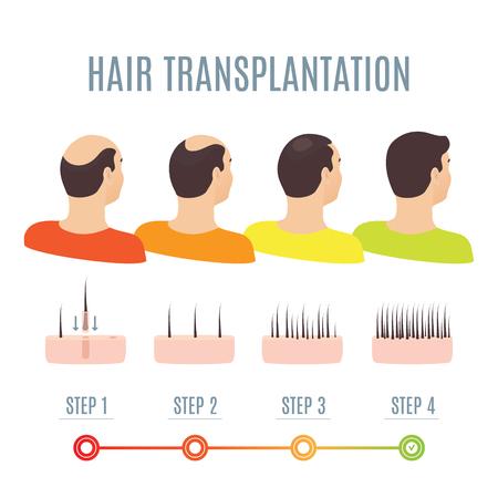 Chirurgia transplantacji włosów kroki infografiki. Mężczyzna pacjent przed i po zabiegu. Leczenie wypadania włosów u mężczyzn metodą FUT, FUE. Łysienie projekt medyczny dla klinik i centrów diagnostycznych. Ilustracje wektorowe