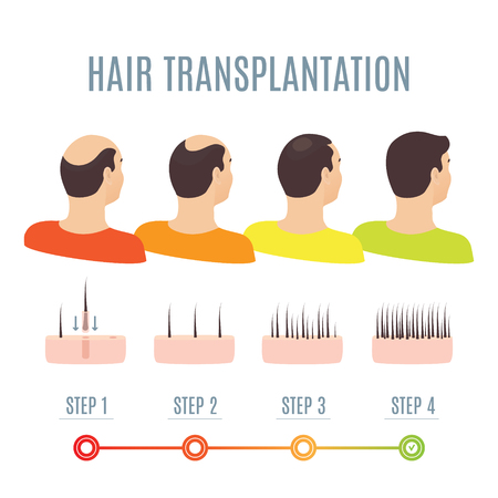 Hair transplantation surgery steps infographics. Man patient before and after procedure. Male hair loss treatment with FUT, FUE method. Alopecia medical design for clinics and diagnostic centers.