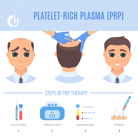 Platelet rich plasma injection procedure. PRP therapy process for men. Male hair loss treatment infographics. Hair regrowth stimulation method. For cosmetology beauty clinic. Vector illustration.