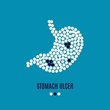 Stomach ulcer awareness pills poster