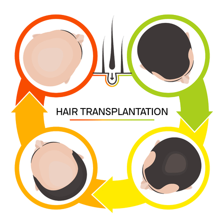 Hair transplantation 4 step infographics Vector illustration.