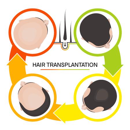 Hair transplantation 4 step infographics Vector illustration. Stock fotó - 97404702