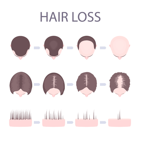 Male and female hair loss Vector illustration.