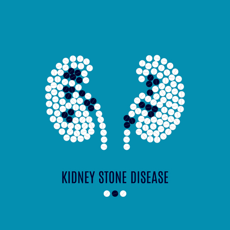 Kidney stone disease pills poster isolated on blue background.