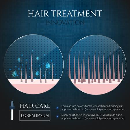 Hair follicles treatment closeup Vector illustration.