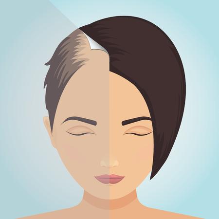 Hair loss in women icon. Vector Illustration