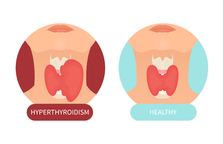 Female healthy thyroid and its disorder