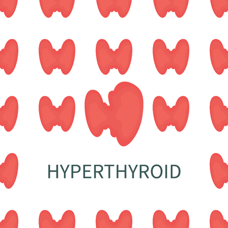 Hyperthyroid medical poster. Pattern of healthy thyroid glands with one overactive organ affected by the illness. Front view anatomy sign. Human endocrine system. Medical symbol. Vector illustration. Illustration