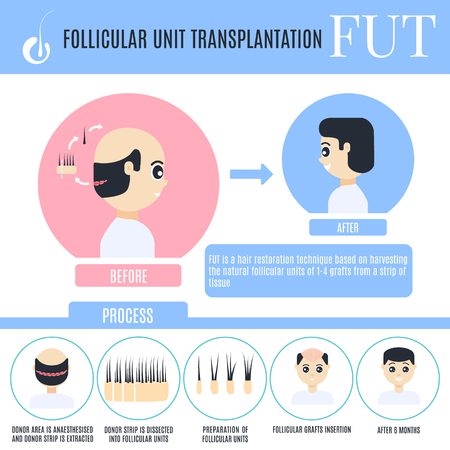 Follicular unit transplantation male hair loss treatment infographics. Stages of FUT procedure. Alopecia medical design template for transplantation clinics. Vector illustration in cartoon style.