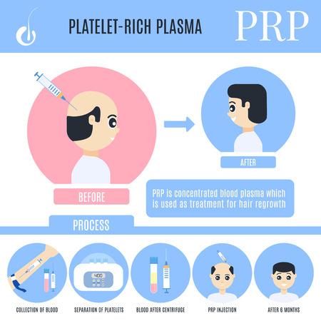 Infografiken zur Behandlung von Haarausfall mit plättchenreichem Plasma. Phasen des PRP-Verfahrens. Medizinische Designvorlage für Alopezie für Transplantationskliniken. Vektorillustration im Cartoon-Stil.