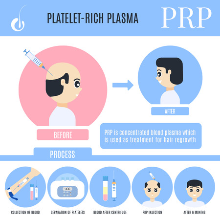 Platelet-rich plasma male hair loss treatment infographics. Stages of PRP procedure. Alopecia medical design template for transplantation clinics. Vector illustration in cartoon style. Reklamní fotografie - 110349878