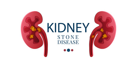 Kidney stone disease awareness poster with kidneys made in 3D paper cut craft style on white background. Renal stones. Medical solidarity concept. Human body organ anatomy icon. Vector illustration.