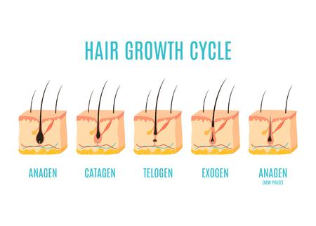 Medizinisches Bildungsplakat des Haarwachstumszyklus. Hautrossschnitt mit einem Haarfollikel in anagener, telogener und katagener Phase. Entnahme-, Behandlungs- und Transplantationskonzept. Vektor-Illustration. Vektorgrafik