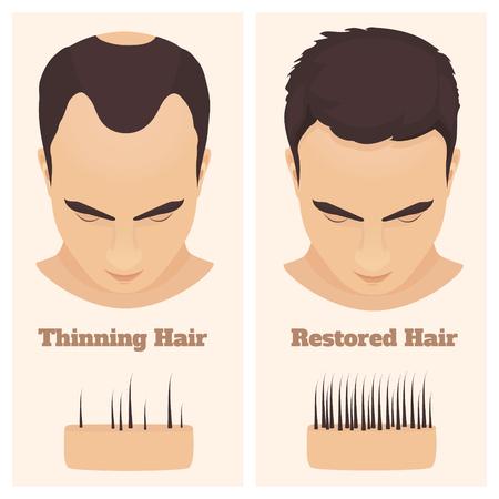 Alopezie-Set mit männlichem Muster. Medizinisches Bildungsplakat. Vektorgrafik