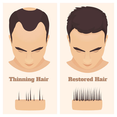 Male pattern alopecia set. Medical educational poster.