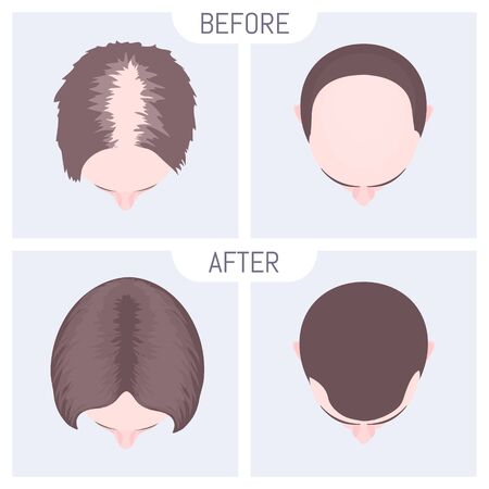 Female and male pattern alopecia set. Medical educational poster