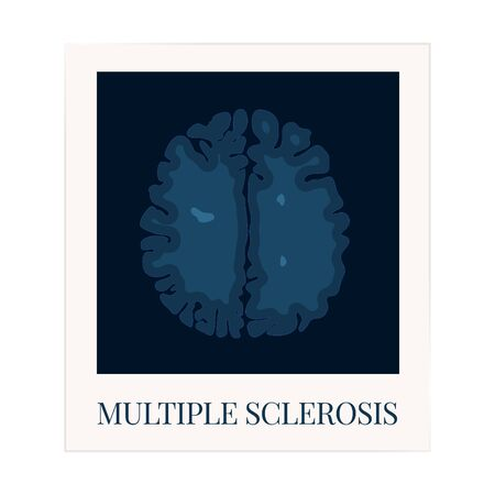 MRI scan of the brain affected by multiple sclerosis