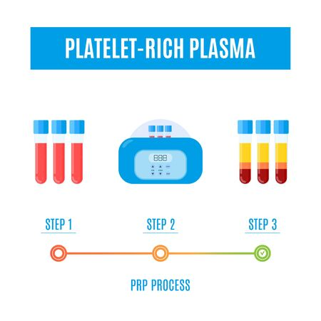 PRP procedure vector infographics with test tubes filled with blood before and after separation of platelets in the centrifuge. Platelet-rich plasma laboratory equipment. Regenerative medicine concept