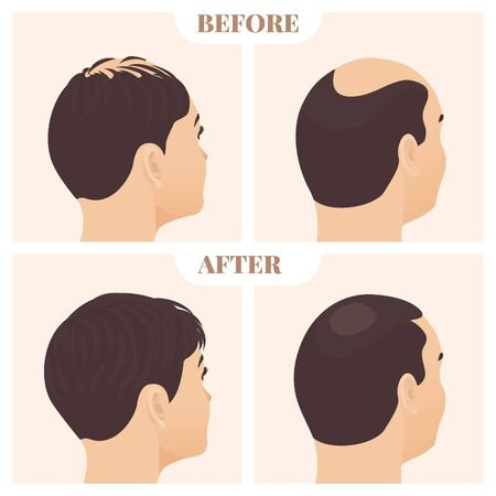 Male and female pattern hair loss set. Baldness treatment result in men and women in side view. Before and after concept. Alopecia infographics medical vector template for clinics. Vector Illustration