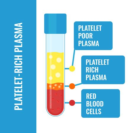 Blood after separation of platelets in the centrifuge. PRP infographics with a test tube. Platelet-rich plasma laboratory equipment. Regenerative medicine concept. Vector illustration. Иллюстрация