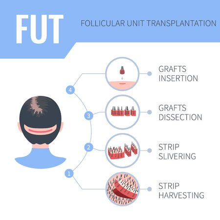 Hair transplantation alopecia treatment by FUT in women. 4 steps infographics. Stages of follicular unit transplantation restoration surgery for female patients. Vector template for clinics. Illustration