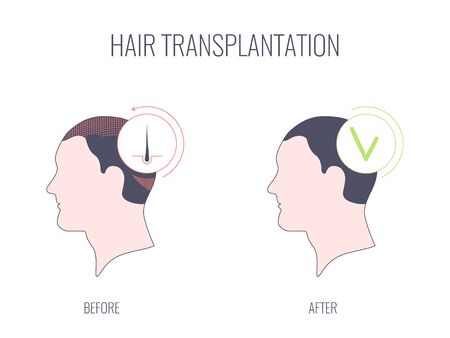 Hair transplant linear medical concept of successful treatment