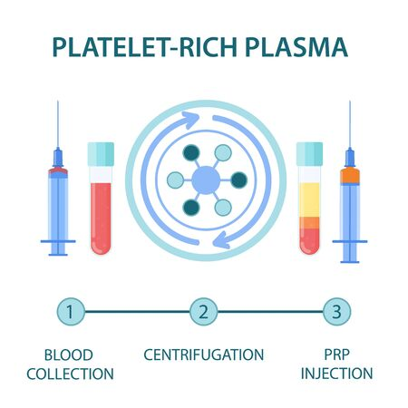 Medical infographics for platelet rich plasma procedure