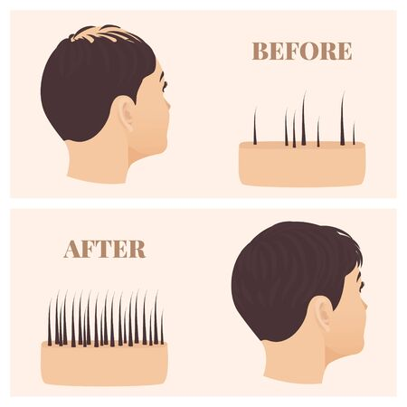 Woman in side view before and after hair loss treatment Ilustrace
