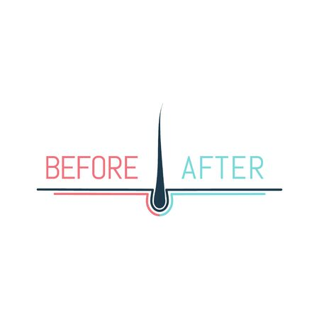 Hair transplant logo with a follicle. Before and after concept.