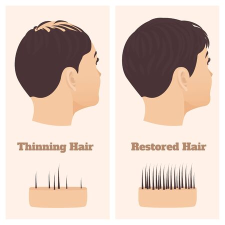 Woman in side view before and after hair loss treatment Illustration