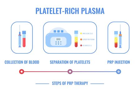 PRP procedure vector infographic. Test tubes and syringes filled with blood before and after separation of platelets in the centrifuge. Platelet-rich plasma composition. Regenerative medicine concept.