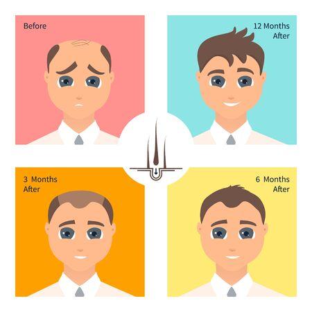 Hair transplantation surgery result in men after three, six and twelve months Ilustración de vector